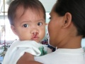 2013-03-16 Kapatagan Project B.O.S.S. Operated infant.JPG