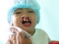 2013-03-17 Kapatagan BOSS A cleft lip child.JPG