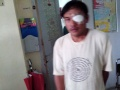 2013-11-13 Surigao II Cataract Patient operated 2.jpg